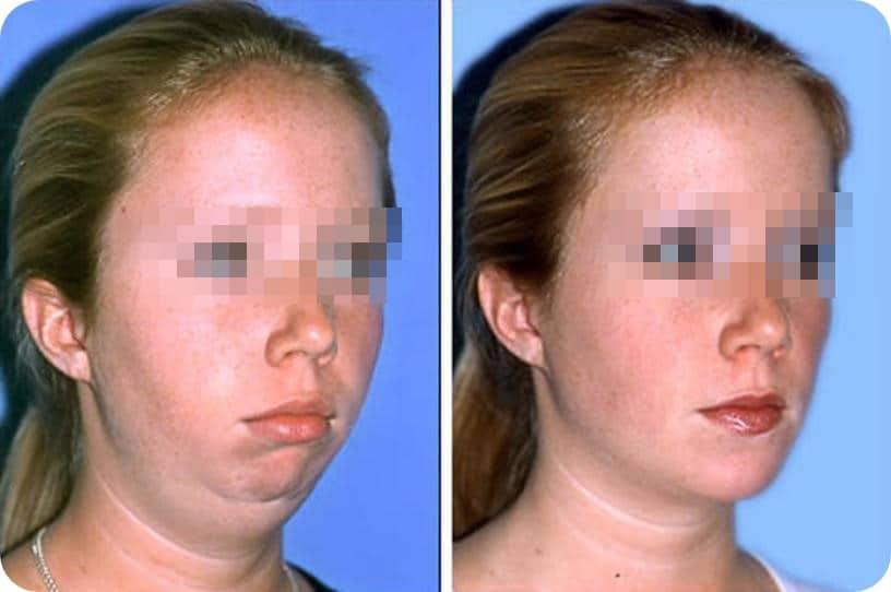 Liposucción de cara y cuello – foto 3