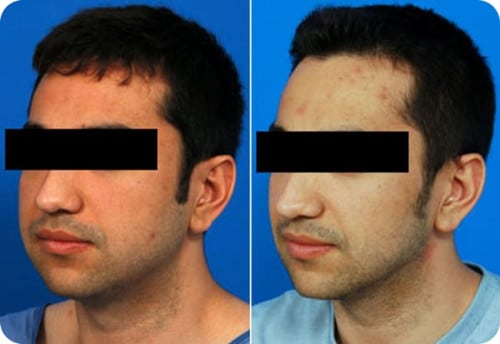 Liposucción de cara y cuello – foto 4