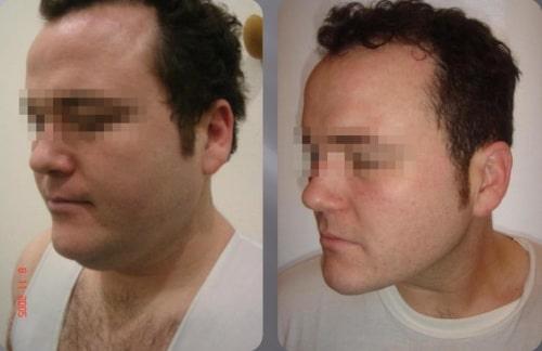 Liposucción de cara y cuello – foto 5