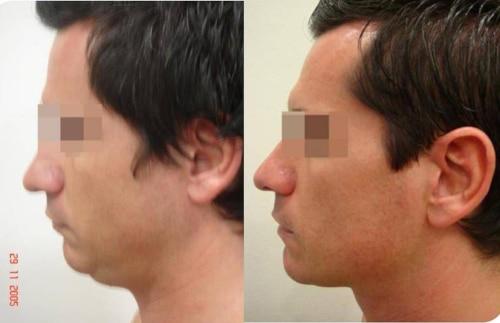 Liposucción de cara y cuello – foto 6