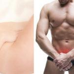 liposucción de pubis masculino y femenino