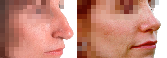 Operación de nariz (rinoplastia)