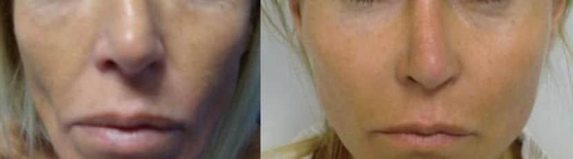 Cheekbone lipofilling - Picture 1