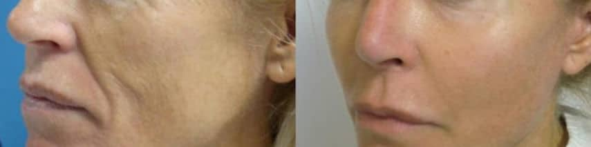 Cheekbone lipofilling - Picture 2