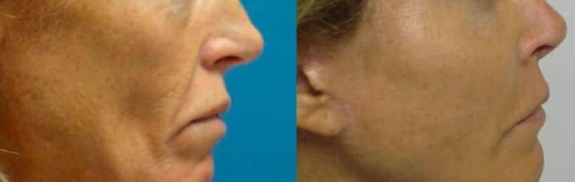 Cheekbone lipofilling - Picture 3