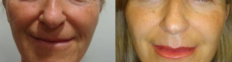 Cheekbone lipofilling - Picture 4