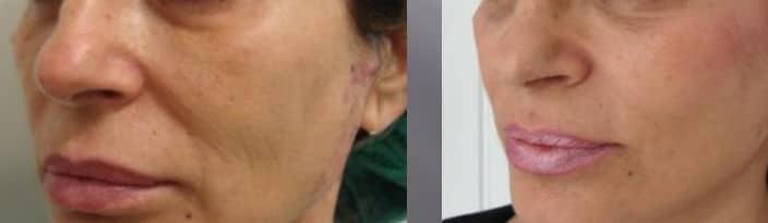 Cheekbone lipofilling - Picture 6