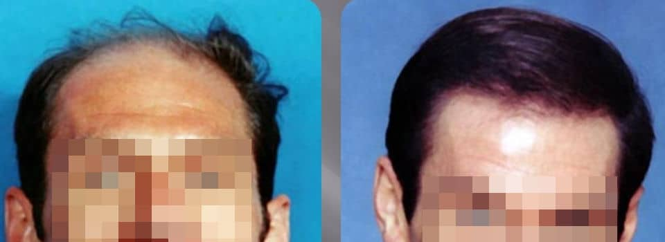 FUT or FUSS hair transplant - Picture 1