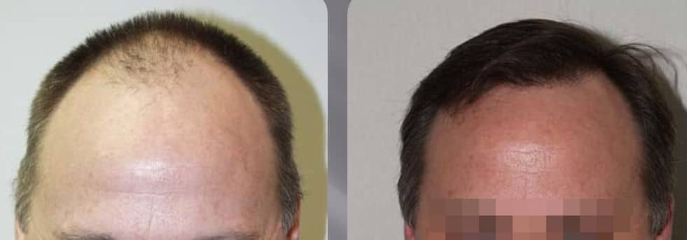 FUT or FUSS hair transplant - Picture 2