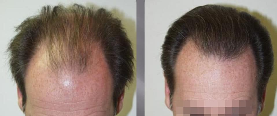 FUT or FUSS hair transplant - Picture 3