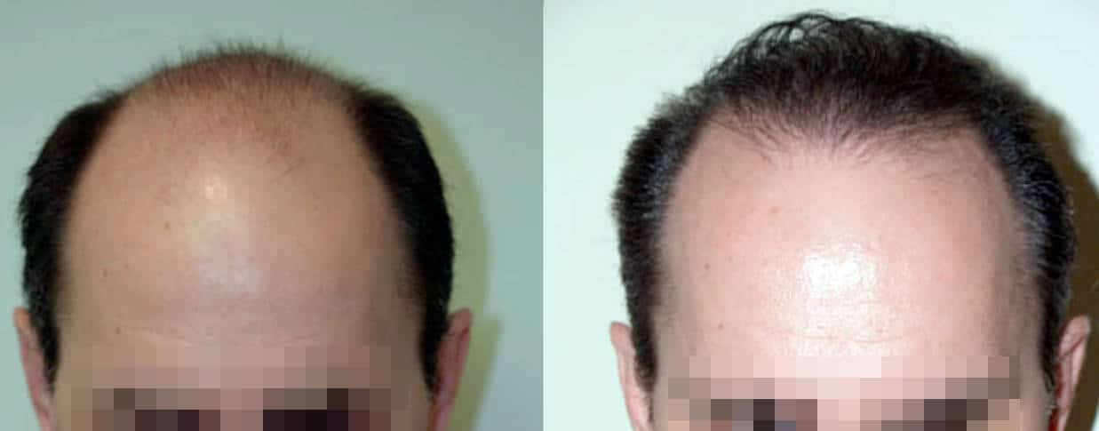 FUT or FUSS hair transplant - Picture 4