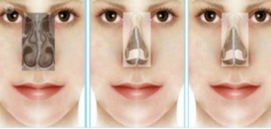 Diferencia-entre-rinoplastia-y-septoplastia-foto-2