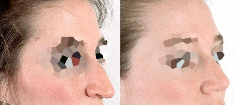 Diferencia entre rinoplastia y septoplastia - foto 3