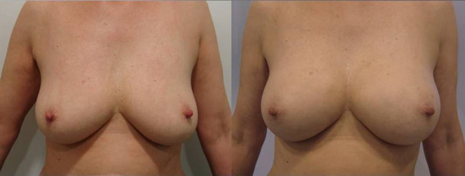 Breast augmentation with fat grafting  - picture 1