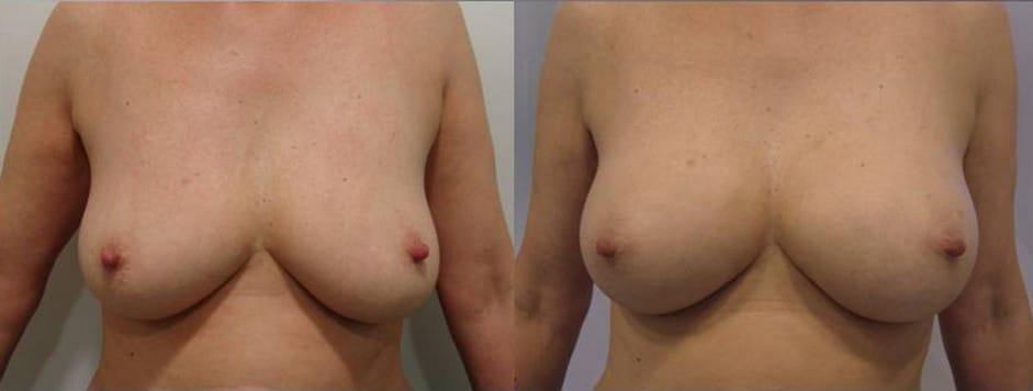 Augment de mames amb greix propi - Foto 1