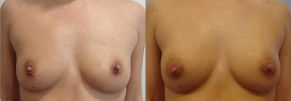 Breast augmentation with fat grafting  - picture 10