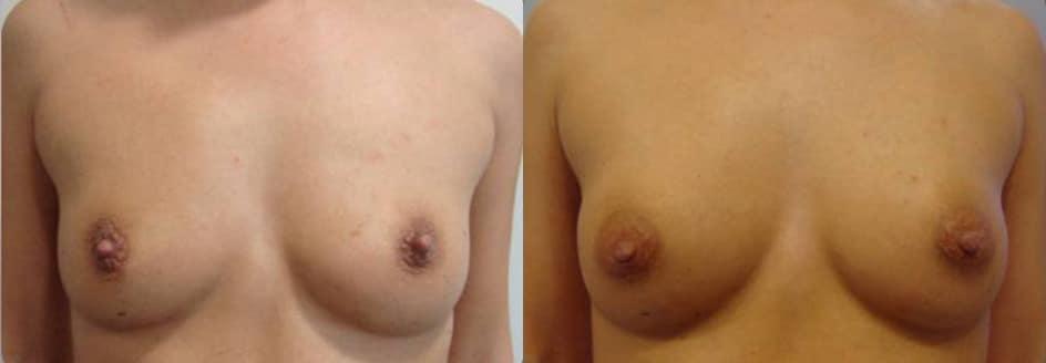 Augment de mames amb greix propi - Foto 5