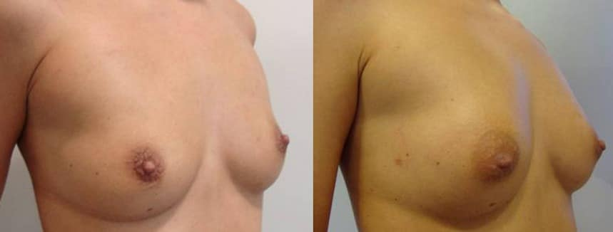 Breast augmentation with fat grafting  - picture 11