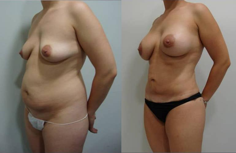 Breast augmentation with fat grafting  - picture 14