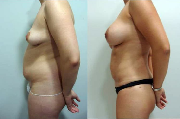 Breast augmentation with fat grafting  - picture 15