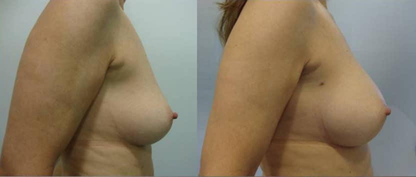 Breast augmentation with fat grafting  - picture 3