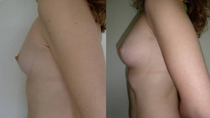 Breast augmentation with fat grafting  - picture 6