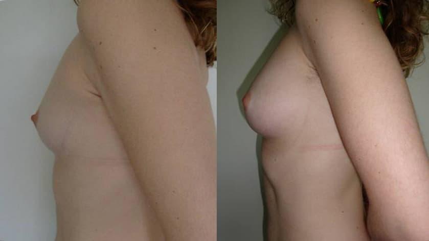Augment de mames amb greix propi - Foto 4