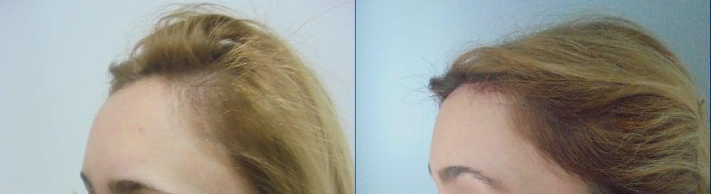 Lifting de cuero cabelludo – caso 4