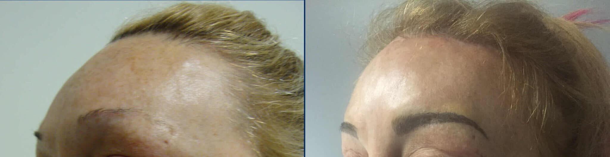 Lifting de cuero cabelludo – caso 5