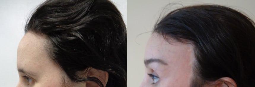 Lifting de cuero cabelludo – caso 6