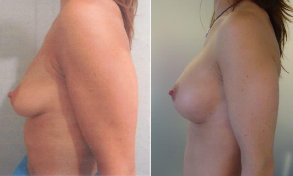 Augment de mames amb pròtesi - Foto 1