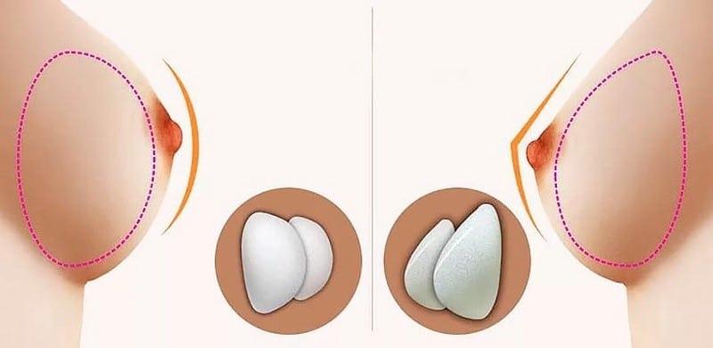 Forma del pit segons tipus de pròtesi