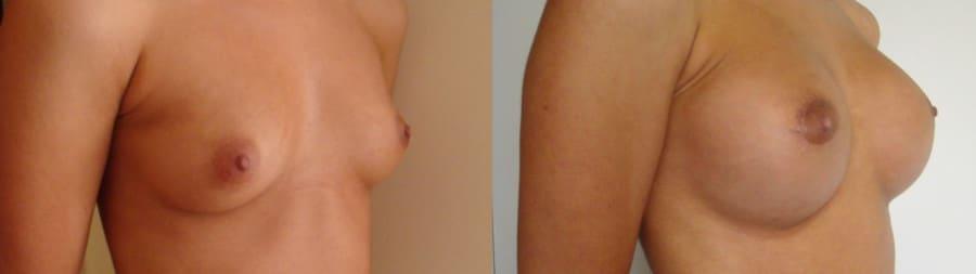 Pròtesis de pit rodones