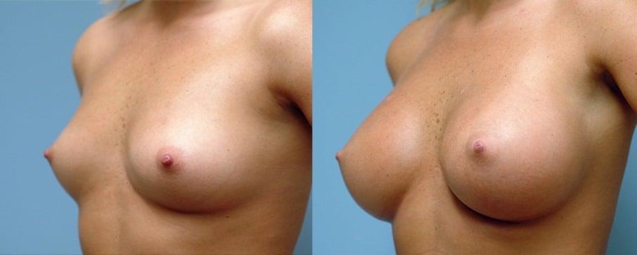Pròtesi de pit anatòmica
