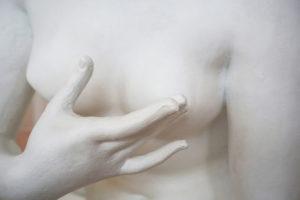 cirugía de mamas - foto1