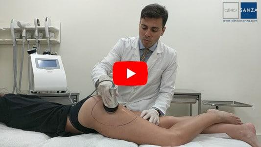 Cavitación, radiofrecuencia, y vacumterapia o drenaje linfático